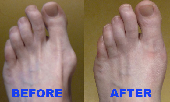 Orthopedic Bunion Corrector Beauty Junkie