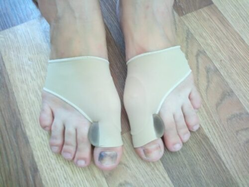 Orthopedic Bunion Corrector photo review